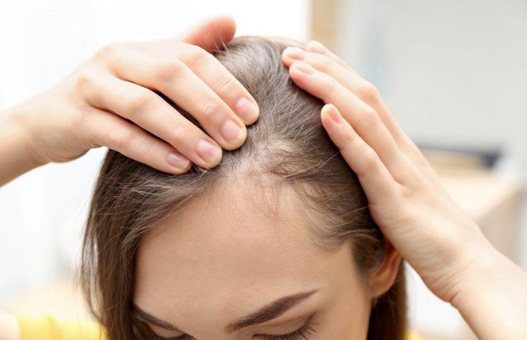 doğum sonrası saç dökülmesi